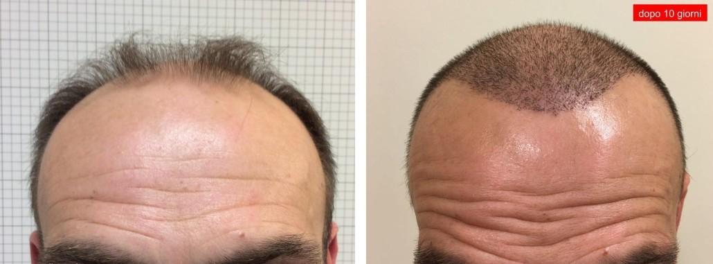 Autotrapianto capelli foto